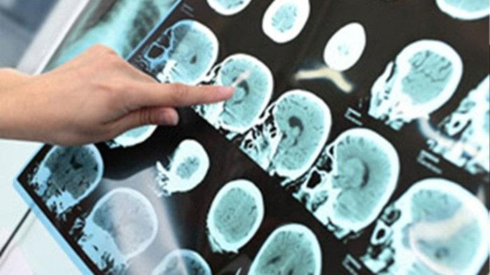 تشخیص تومورهای قاعده جمجمه