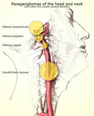 تومور گلوموس ژوگولار