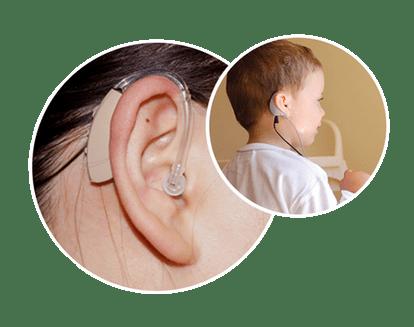 cochlear-implantation