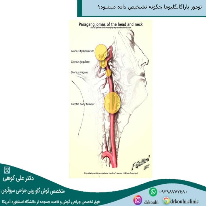 درمان تومور پاراگانگلیوما