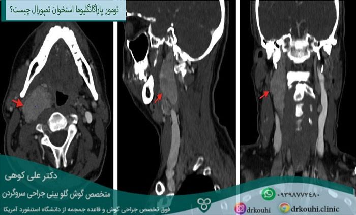 تومور پاراگانگلیوما استخوان تمپورال