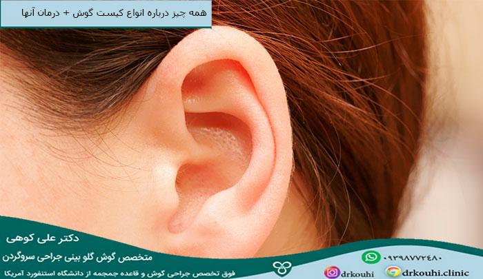 انواع کیست گوش