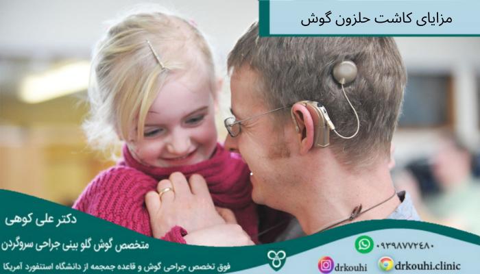 کاشت حلزون گوش در بزرگسالان