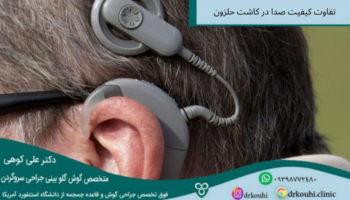 تفاوت کیفیت شنیدن صدا با کاشت حلزون و گوش سالم